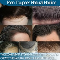 How To Create The Most Natural Hairline